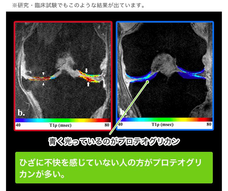 軟骨成分の分解を抑え、関節軟骨の保護に役立ち、ひざ関 節の曲げ伸ばしをサポート